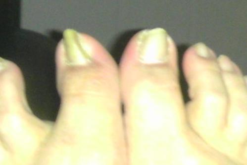 bad-toe-4